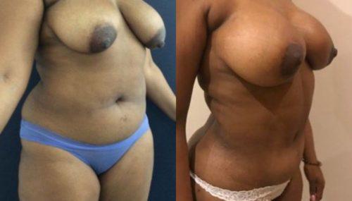 breast augmentation colombia 279-4-min