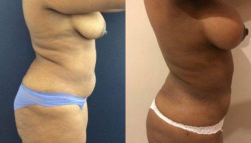 breast augmentation colombia 279-5-min