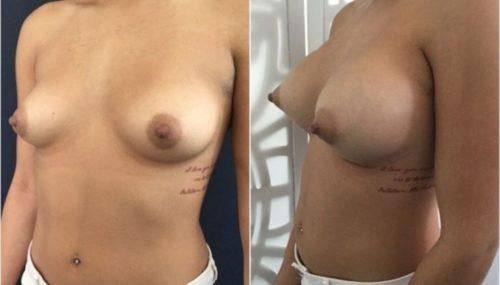 breast augmentation colombia 292-2-min