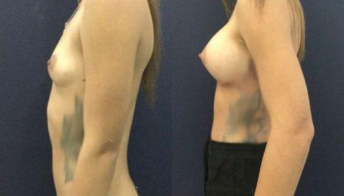 breast augmentation colombia 306-3-min