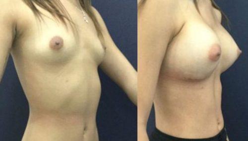 breast augmentation colombia 306-4-min