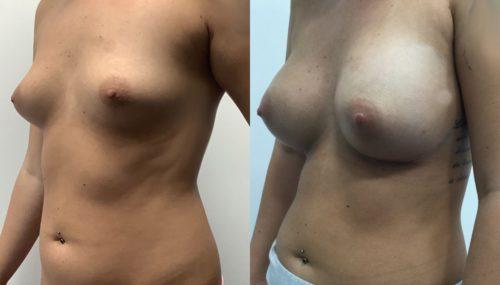breast augmentation colombia 315-2-min