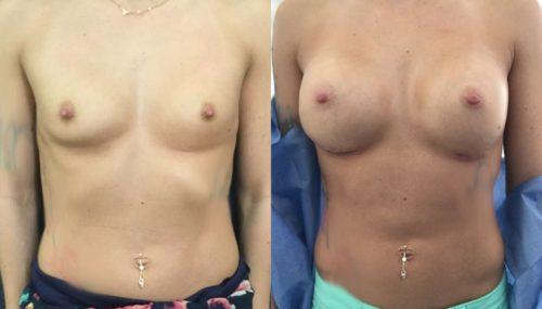 breast augmentation colombia 316-1-min