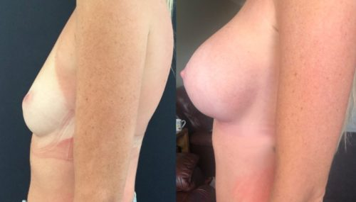breast augmentation colombia 344-3-min