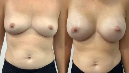 breast augmentation colombia 365-1-min