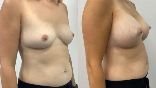 breast augmentation colombia 365-2-min