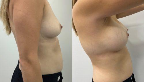 breast augmentation colombia 365-3-min