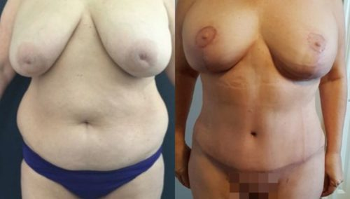 breast lift colombia 252-1-min