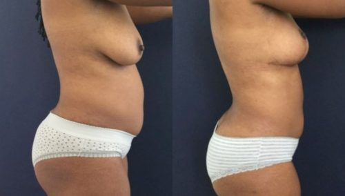 breast lift colombia 273-3-min