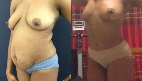 breast lift colombia 293-2-min