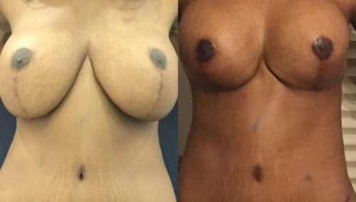 breast revision colombia 357 - 1