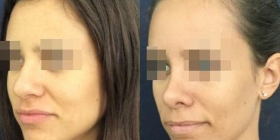 buccal fat pad excision Colombia 212 - 2-min