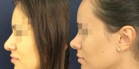 buccal fat pad excision Colombia 212 - 3-min