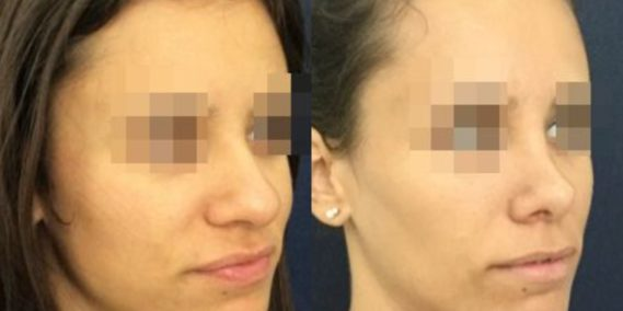 buccal fat pad excision Colombia 212 - 4-min