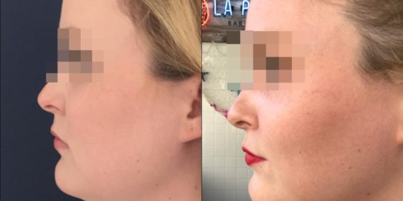 buccal fat pad excision Colombia 333 - 2-min
