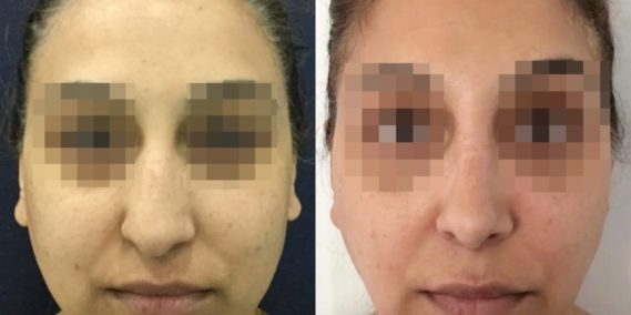 buccal fat pad excision Colombia 342 - 1-min