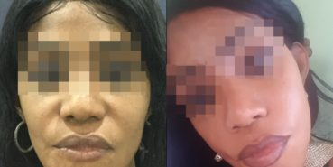facelift colombia 211 - 3-min