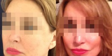 facelift colombia 236 - 2-min