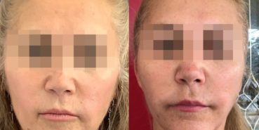 facelift colombia 320 - 1-min