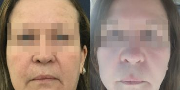 facelift colombia 329 - 1-min