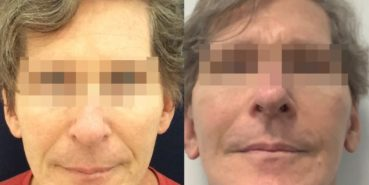 facelift colombia 362 - 1-min