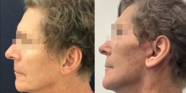 facelift colombia 362 - 3-min