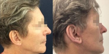 facelift colombia 362 - 5-min