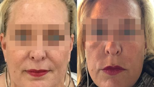 facial fat grafting colombia 106 - 1-min