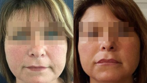 facial fat grafting colombia 294 - 1-min