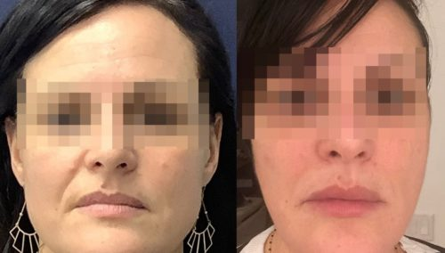 facial fat grafting colombia 317 - 1-min