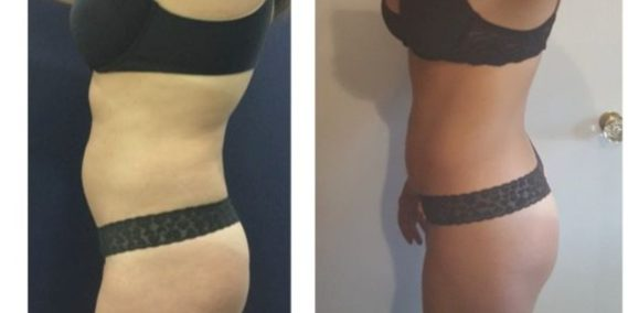 liposuction colombia 247 - 3-min