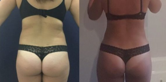 liposuction colombia 247 - 5-min