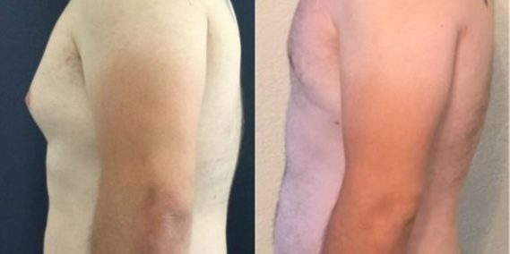 liposuction colombia 258 - 3-min